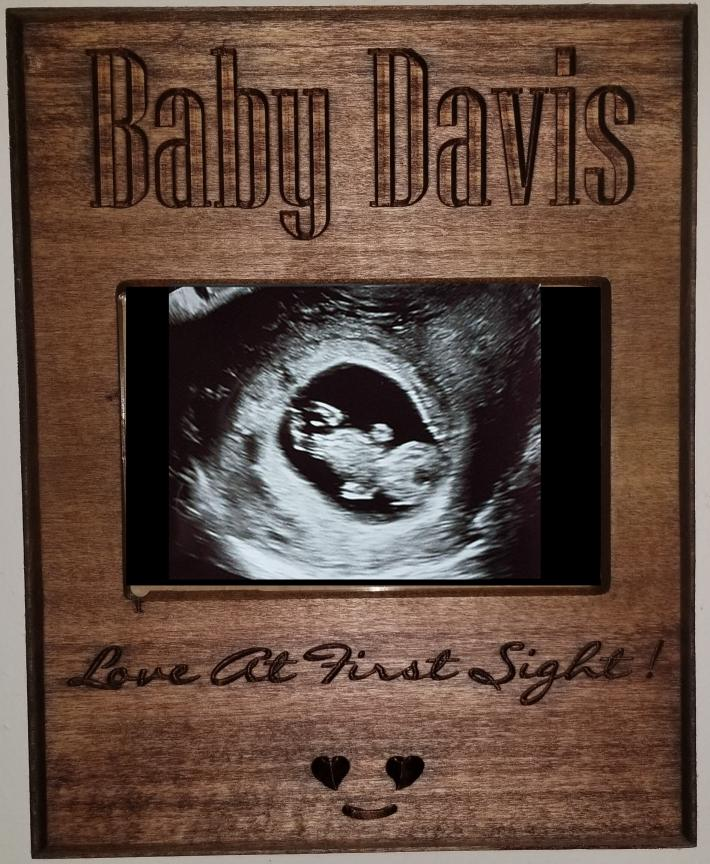 Love At First Site Ultrasound Frame